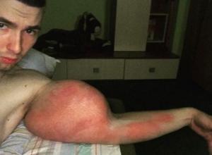 Фото руки Кирилла Терешина из Пятигорска ужаснуло его подписчиков в соцсетях