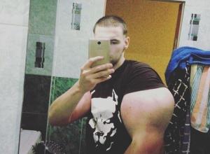 Чудовищно огромные руки за месяц накачал синтолом 21-летний пятигорчанин