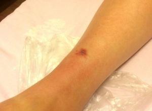Неизвестная мошка с болезненным укусом терроризирует ставропольчан