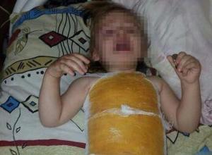 Двухлетняя девочка получила ожоги в детском саду Буденновска
