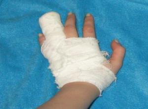 Столкновение с джипом закончилось переломом пальца для ставропольского подростка