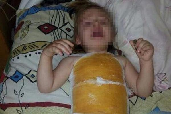 Вдетском саду наСтаврополье двухлетнюю девочку облили кипятком
