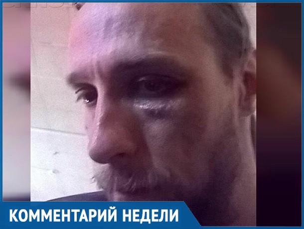 «Обливают зеленкой, кидают гранаты во двор, избивают»: ставропольский журналист поделился догадками о нападении