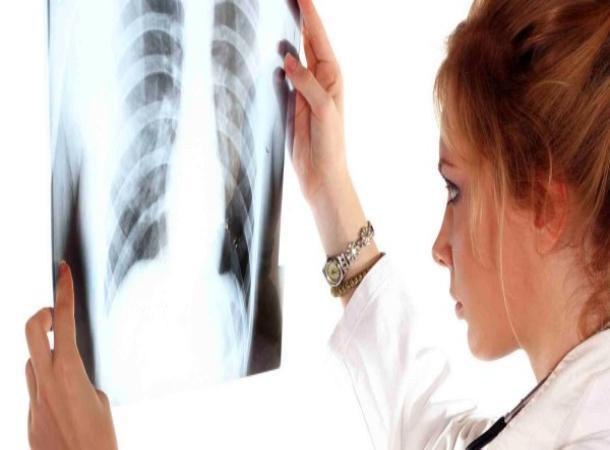 Уклоняющихся больных заразным туберкулезом принудительно отправили налечение наСтаврополье