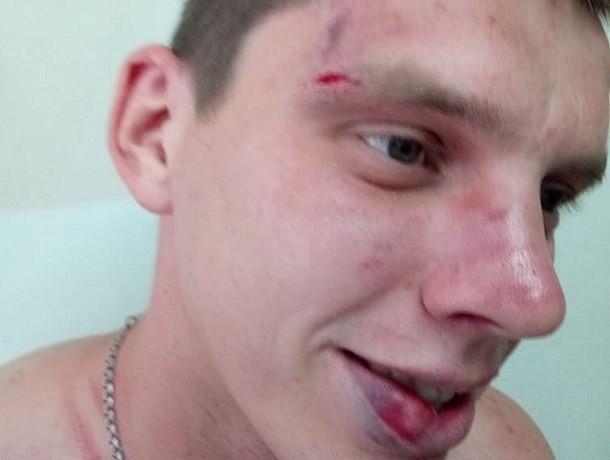 «Уголовного дела не будет»: избитый в здании ГИБДД Буденновска пожаловался на несправедливость