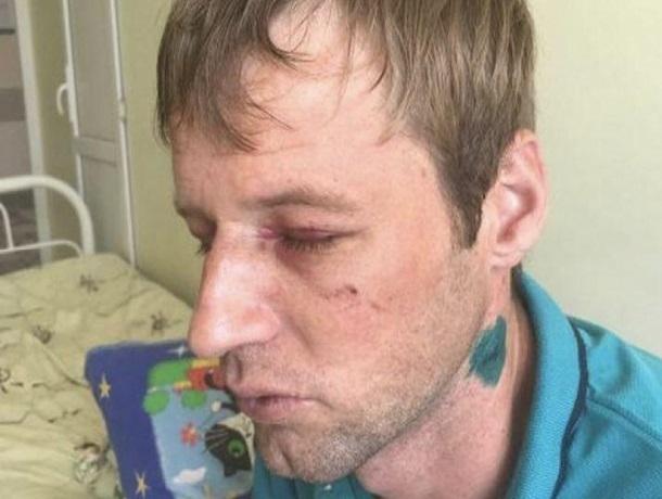 Молодую семью зверски избили из-за замечания не кричать ночью под окнами в Ставрополе