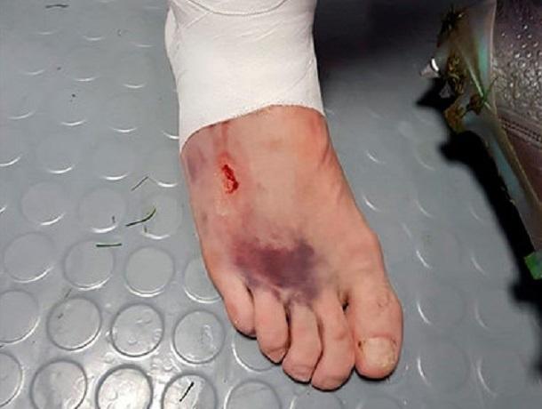 Ставрополец Кутепов отыграл матч с Хорватией с серьезной травмой ноги