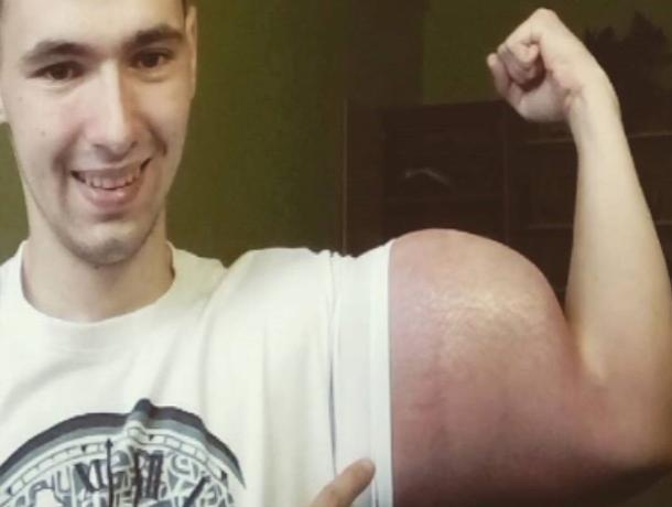 «Руки-базуки» сдулись: пятигорский «качок» Терешин  избавился от синтоловых бицепцов