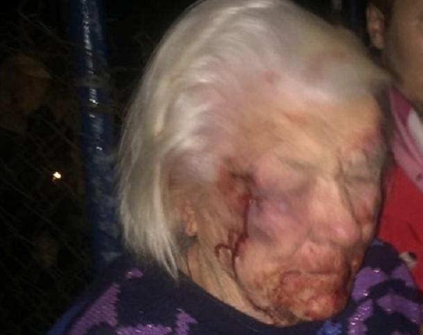Появились подробности страшного избиения 89-летней ветерана ВОВ молодым мужчиной на Ставрополье