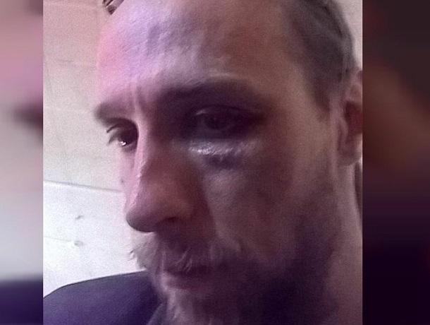 «Будешь знать, как язык распускать»: известного журналиста избили в центре Ставрополя