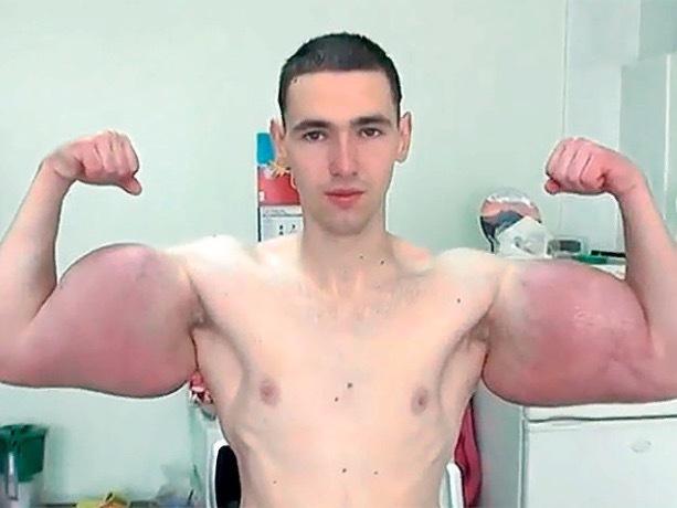 Кирилл «руки-базуки» Терёшин показал что из него достали во время операции