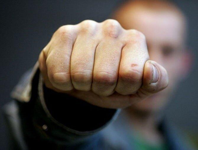В Ставрополе школьнику сломали челюсть во время драки