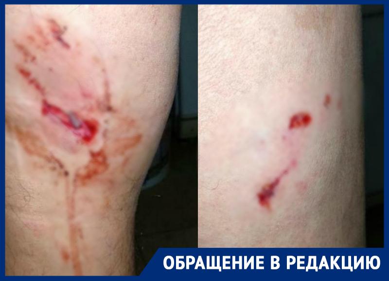 70-летнего пенсионера погрызли бойцовские собаки на Ставрополье